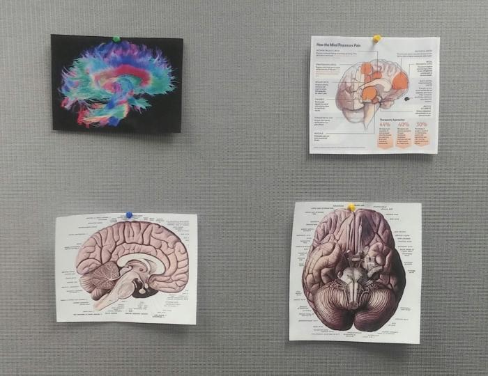 brain-study